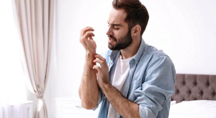 Micoses mais comuns em homens: saiba como tratar
