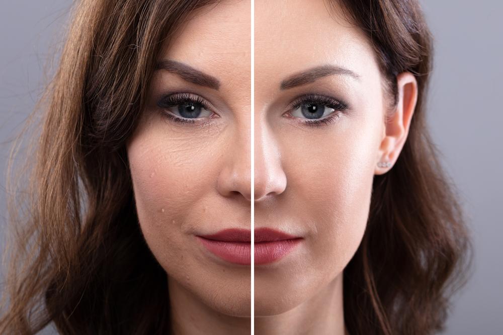 Conheça algumas opções de rejuvenescimento facial